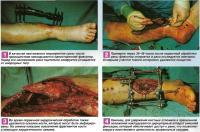 Стабилизация отломков кости