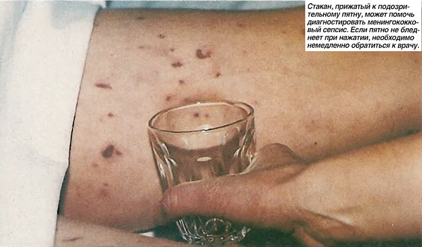 Стакан может помочь диагностировать менингококковый сепсис