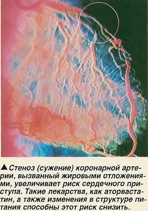 Стеноз (сужение) коронарной артерии