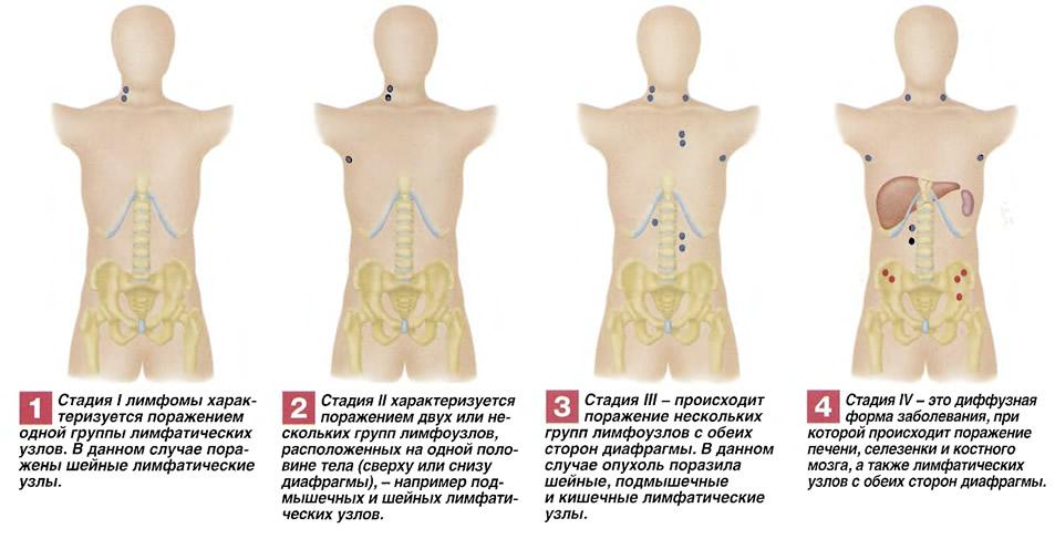 Степени распространения лимфомы