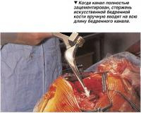 Стержень искусственной бедренной кости вручную вводят на всю длину бедренного канала