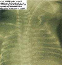 Стрептококк может вызвать серьезные заболевания, такие как пневмония
