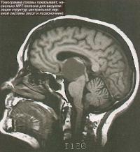 Структура головы, полученная с помощью МРТ
