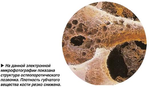 Структура остеопоротического позвонка.