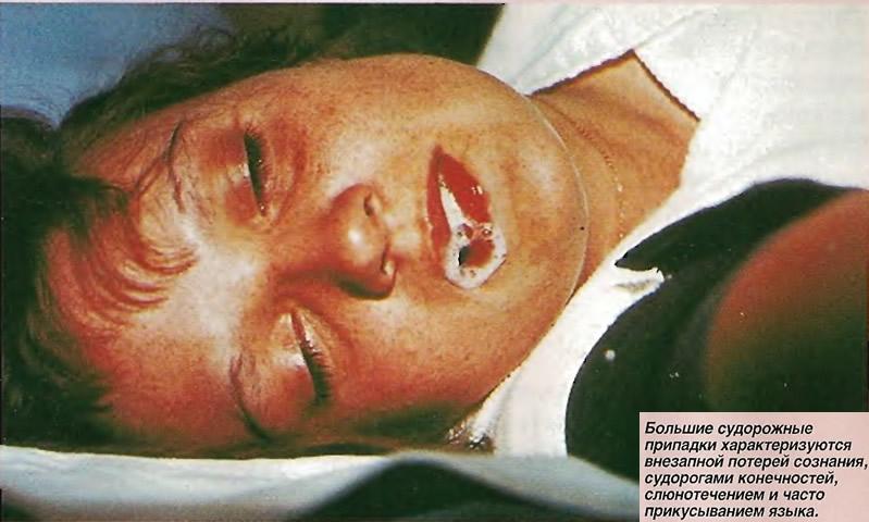 Судорожные припадки характеризуются внезапной потерей сознания, судорогами, слюнотечением