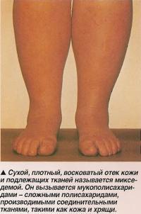 Сухой, плотный, восковатый отек кожи называется микседемой