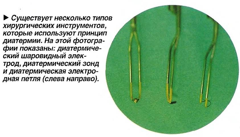 Существует несколько типов хирургических инструментов, которые используют принцип диатермии