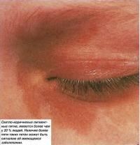 Светло-коричневые пигментные пятна, имеются более чем у 20% людей