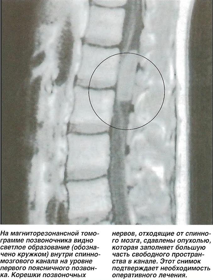 Светлое образование внутри спинномозгового канала