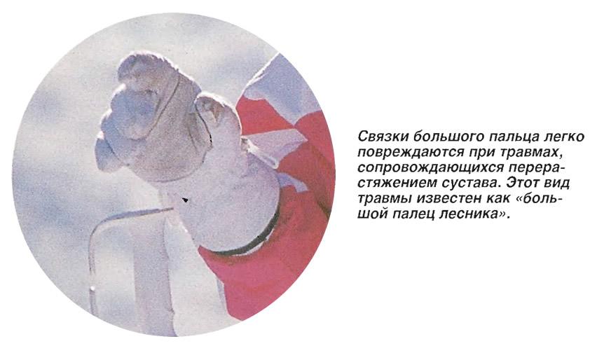 Связки большого пальца легко повреждаются при травмах