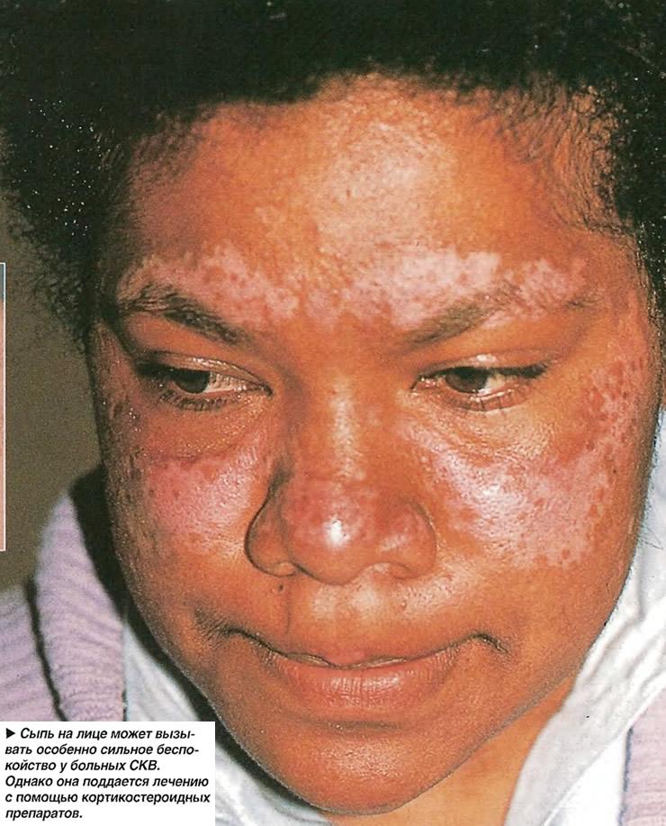 Сыпь на лице может вызывать особенно сильное беспокойство у больных СКВ
