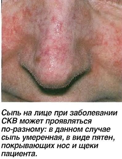Сыпь на лице при заболевании СКВ может проявляться по-разному