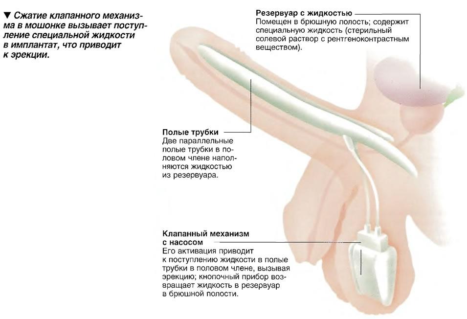 Сжатие клапанного механизма в мошонке вызывает поступление специальной жидкости в имплантат