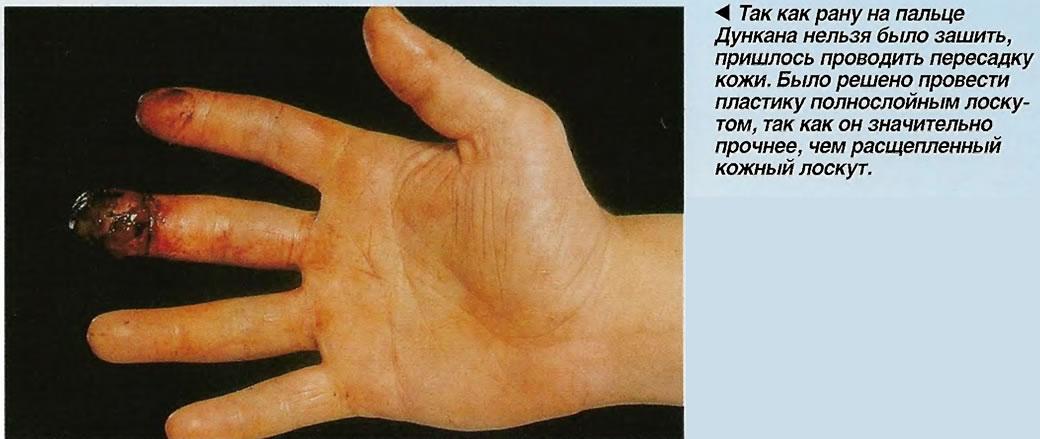 Поранил пальцем влагалище