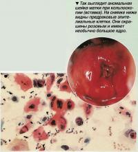 Так выглядит аномальная шейка матки при кольпоскопии