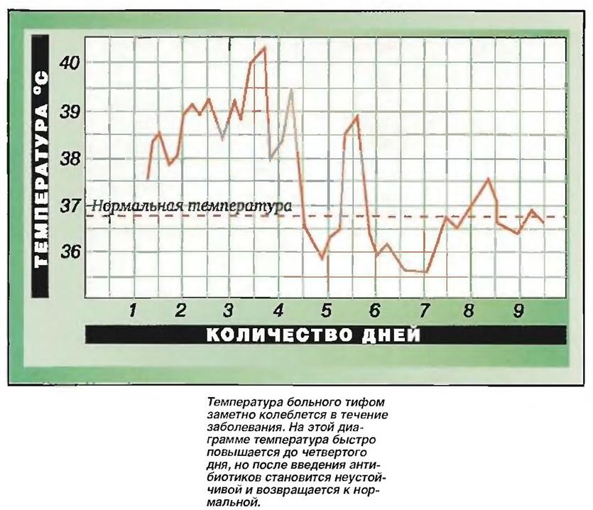 Температура больного тифом заметно колеблется в течение заболевания