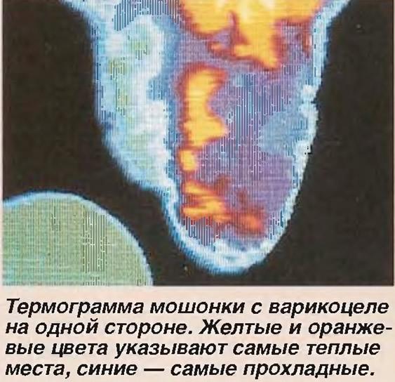 Термограмма мошонки с варикоцеле на одной стороне
