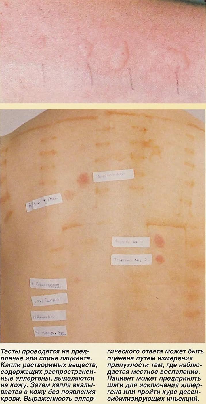 Тесты проводятся на предплечье или спине пациента