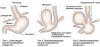 Типы грыжи пищеводного отверстия диафрагмы