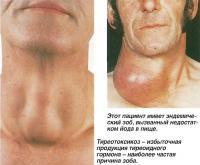 Тиреотоксикоз - избыточная продукция тиреоидного гормона