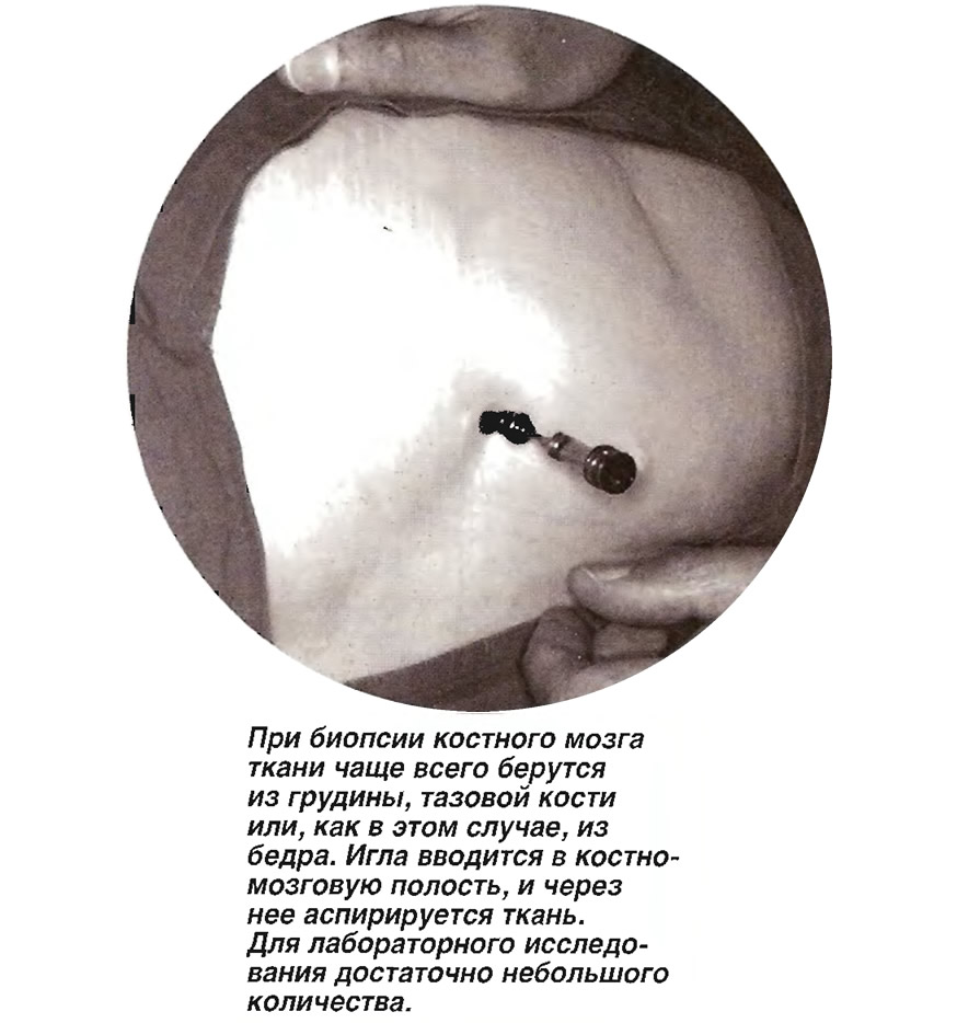 Ткани чаще всего берутся из грудины, тазовой кости или из бедра