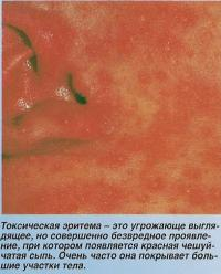 Токсическая эритема