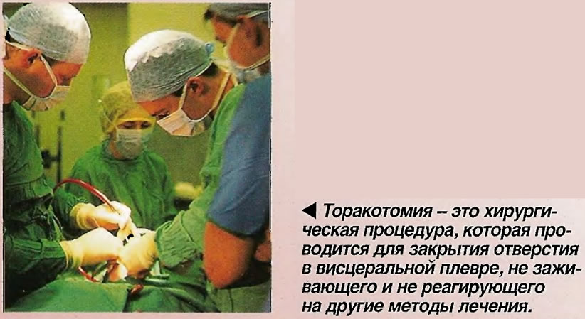 Торакотомия - проводится для закрытия отверстия в висцеральной плевре