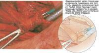 Трахеопищеводная пункция для восстановления голоса