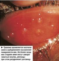 Трахома