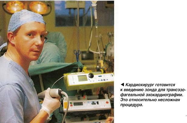 Трансэзофагеальная эхокардиографи