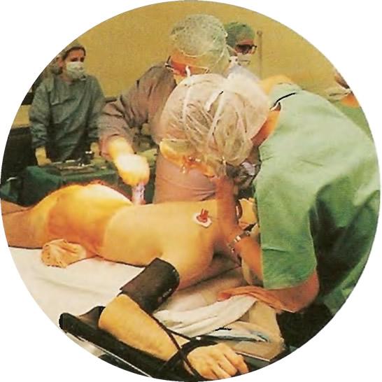 Трансплантация костного мозга улучшает прогноз у всех пациентов