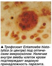 Трофозоит Entamoeba histolytica (в центре) под оптическим микроскопом