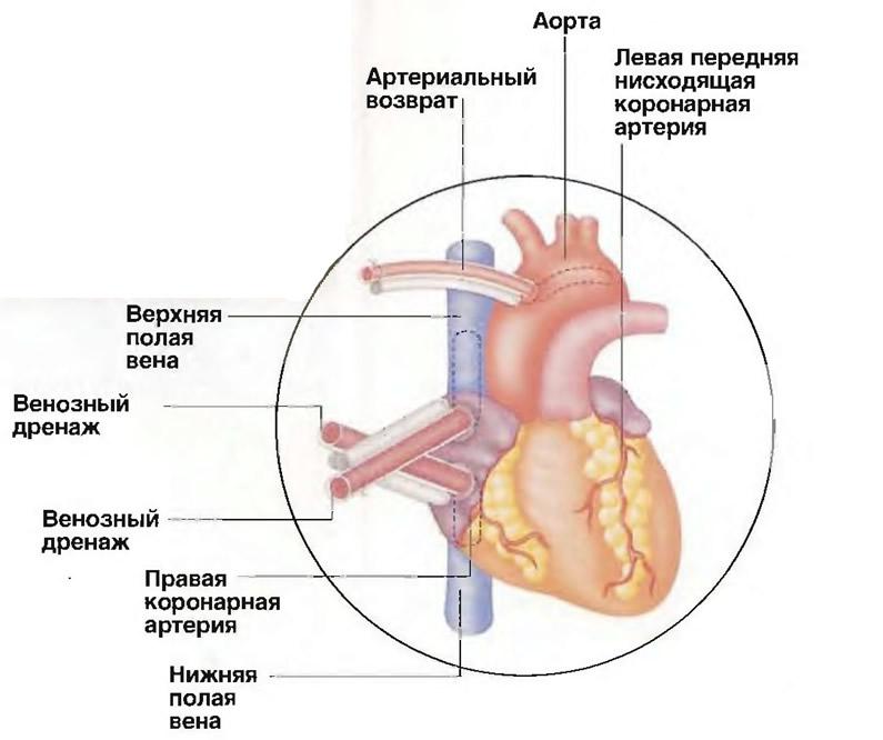 Трубка артериального возврата вставляется в аорту