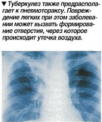 Туберкулез также предрасполагает к пневмотораксу