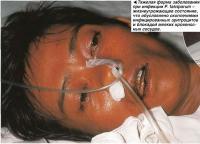 Тяжелая форма заболевания при инфекции P. falciparum