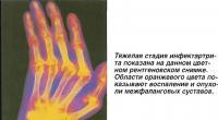 Тяжелая стадия инфектартрита на цветном рентгеновском снимке