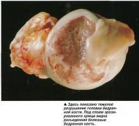 Тяжелое разрушение головки бедренной кости