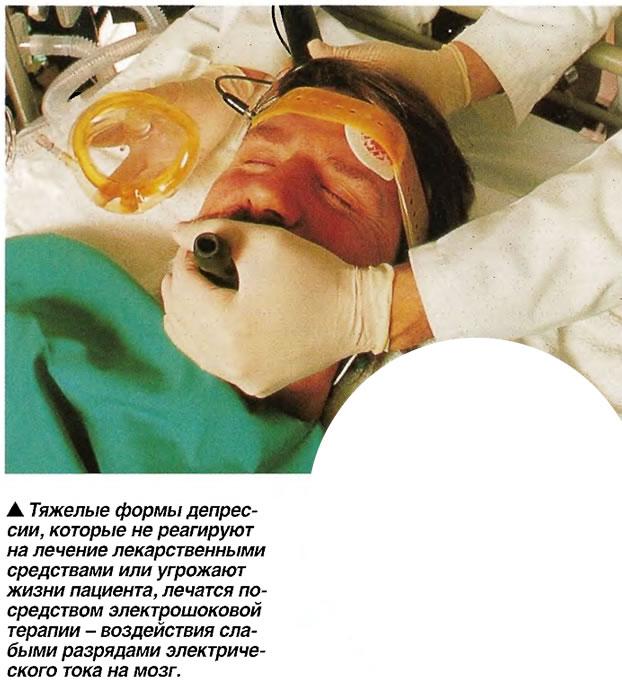 Тяжелые формы депрессии ечатся посредством электрошоковой терапии