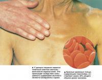 У данного пациента имеется типичный симптом желтухи - желтоватая окраска кожи