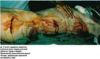 У этого пациента имеются колотые раны подмышечной области, груди и бедра