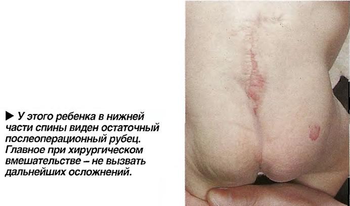 У этого ребенка в нижней части спины виден остаточный послеоперационный рубец