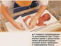 У каждого новорожденного выполняется тест Гутри -анализ крови с целью выявления фенилкетонурии