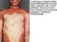 У некоторых людей альбинизм наблюдается только на части тела