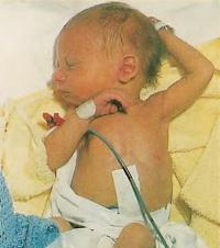 У новорожденных также может развиваться желтуха