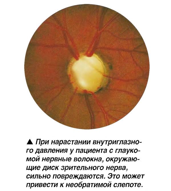 У пациента с глаукомой нервные волокна, окружающие диск зрительного нерва, сильно повреждаются