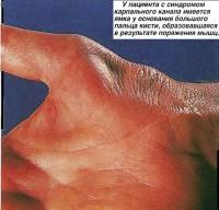 У пациента с синдромом карпального канала имеется ямка у основания большого пальца кисти