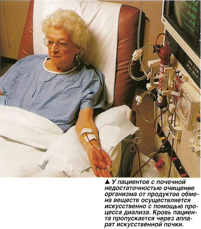 У пациентов с почечной недостаточностью очищение организма осуществляется искусственно