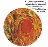 У пациентов, страдающих язвой желудка, могут проявляться аналогичные СРТК симптомы