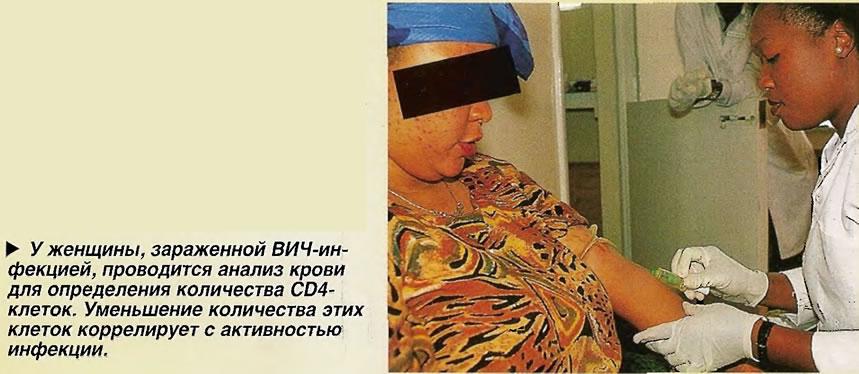 У женщины, зараженной ВИЧ-инфекцией, проводится анализ крови для определения количества CD4-клеток