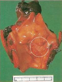 Удаленная гортань раскрыта с задней стороны, участок опухоли обозначен кругом